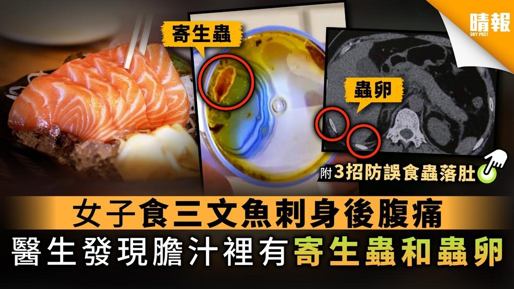 【魚生寄生蟲】女子食三文魚刺身後腹痛 醫生發現膽汁裡有寄生蟲和蟲卵