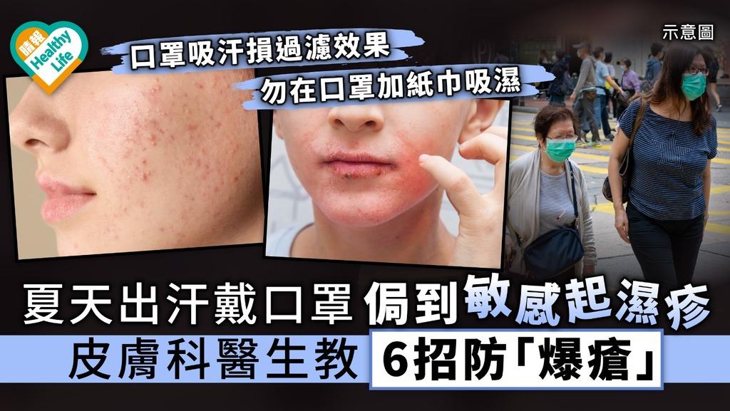 【立夏.戴口罩】夏天出汗戴口罩侷到敏感起濕疹 皮膚科醫生教6招防「爆瘡」
