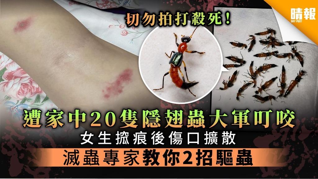 【切勿拍死】遭家中20隻隱翅蟲大軍叮咬 女生抓癢後傷口擴散 滅蟲專家教你2招驅蟲