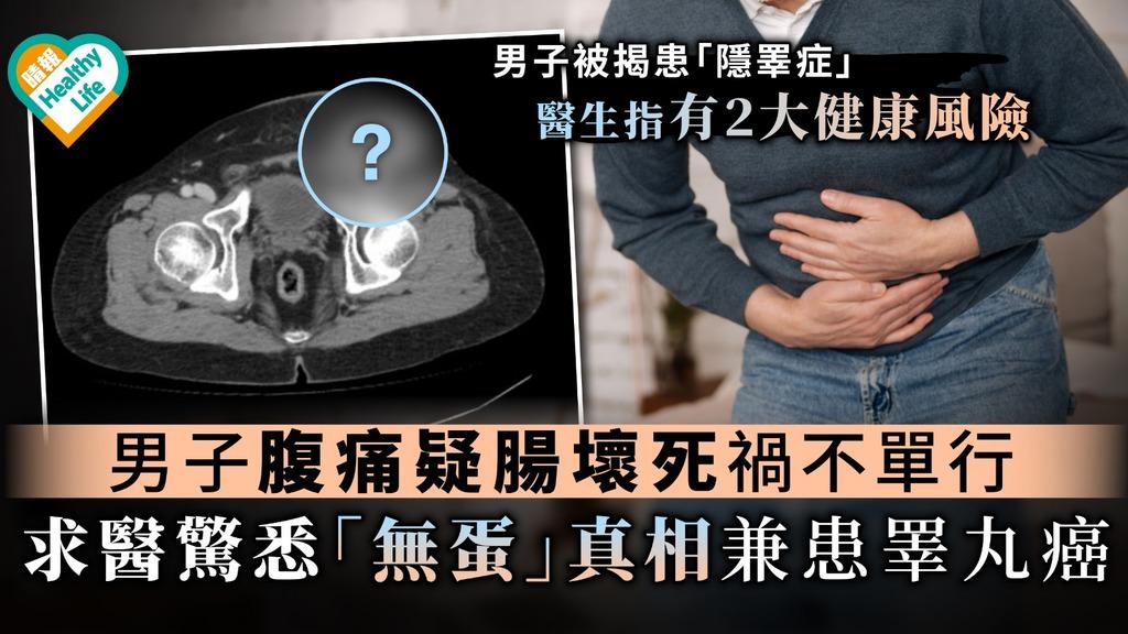 【消失的蛋蛋】男子腹痛疑腸壞死禍不單行 求醫驚悉「無蛋」真相兼患睪丸癌【附隱睪症2大健康風險】