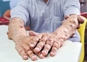 全身纖維瘤 顏損者互助抗歧視 創病友組織 望大眾接納