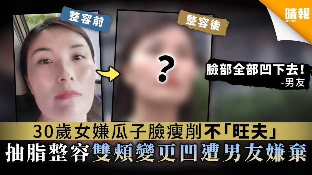 【反效果】30歲女嫌瓜子臉瘦削不「旺夫」 抽脂整容雙頰變更凹遭男友嫌棄