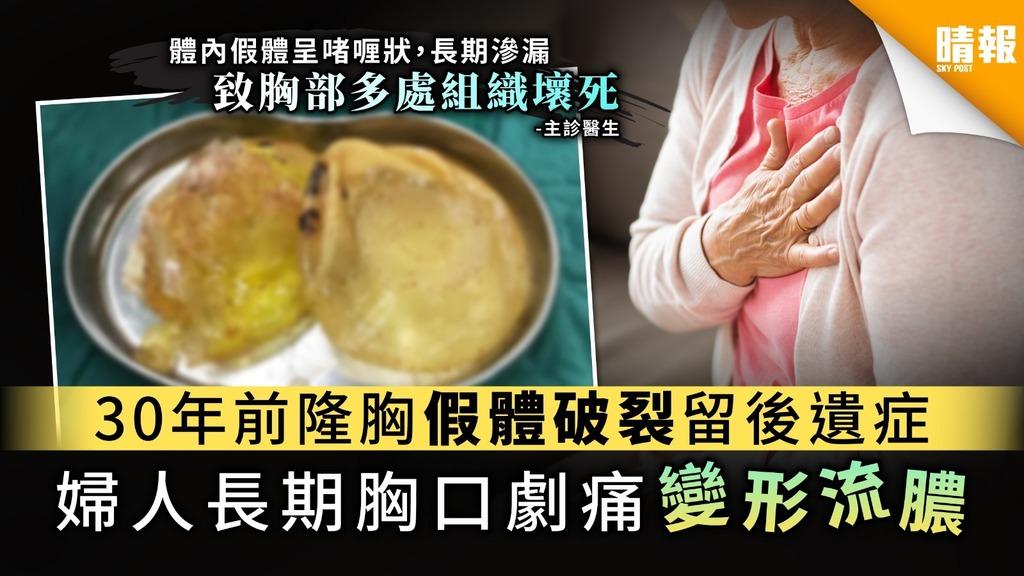 【隆胸後遺症】30年前隆胸假體破裂留後遺症 婦人長期胸口劇痛變形流膿