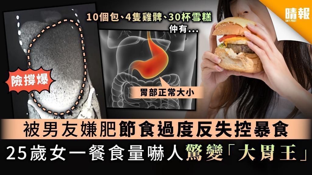 【減肥累事】被男友嫌肥節食過度反失控暴食 25歲女一餐食量勁嚇人驚變「大胃王」