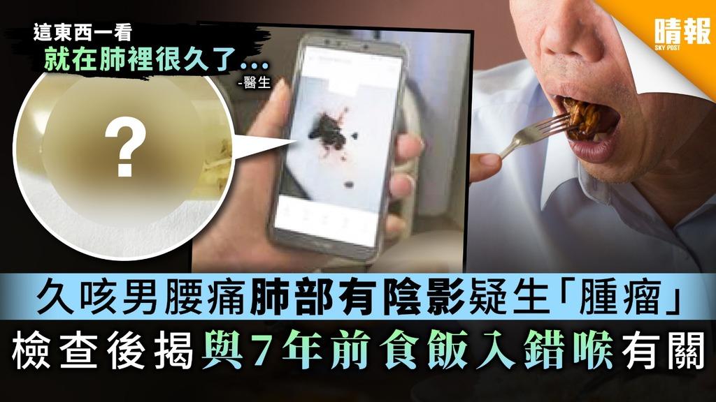 【小心進食】久咳男腰痛肺部有陰影疑生「腫瘤」 檢查後揭與7年前食飯入錯喉有關