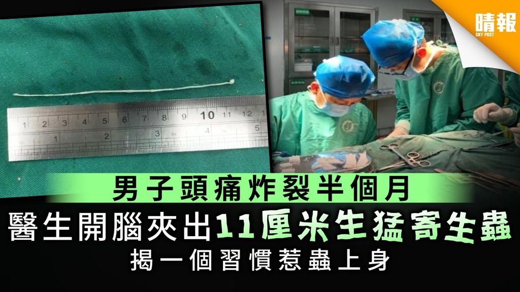 【腦生蟲】男子頭痛炸裂半個月 醫生開腦夾出11厘米生猛寄生蟲