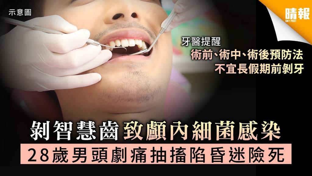 【拔智慧齒】剝智慧齒致顱內細菌感染 28歲男頭劇痛抽搐陷昏迷險死【附醫生建議預防方法】
