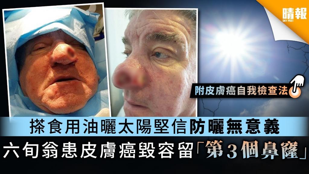 【黑色素瘤】搽食用油曬太陽寧棄防曬霜 六旬翁患皮膚癌毀容留「第3個鼻窿」
