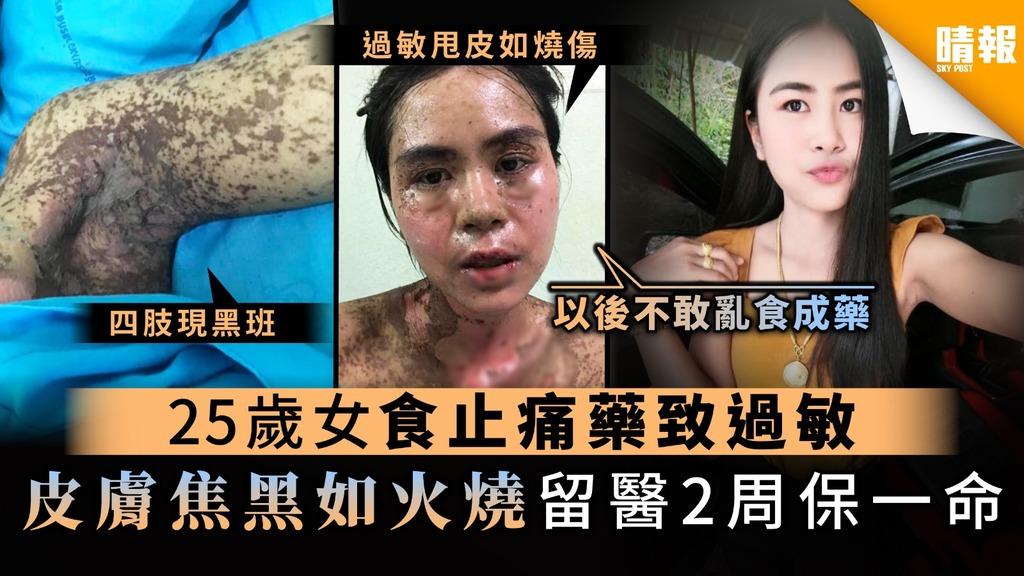 【藥物過敏】25歲女食止痛藥致過敏 皮膚焦黑如火燒留醫2周保一命