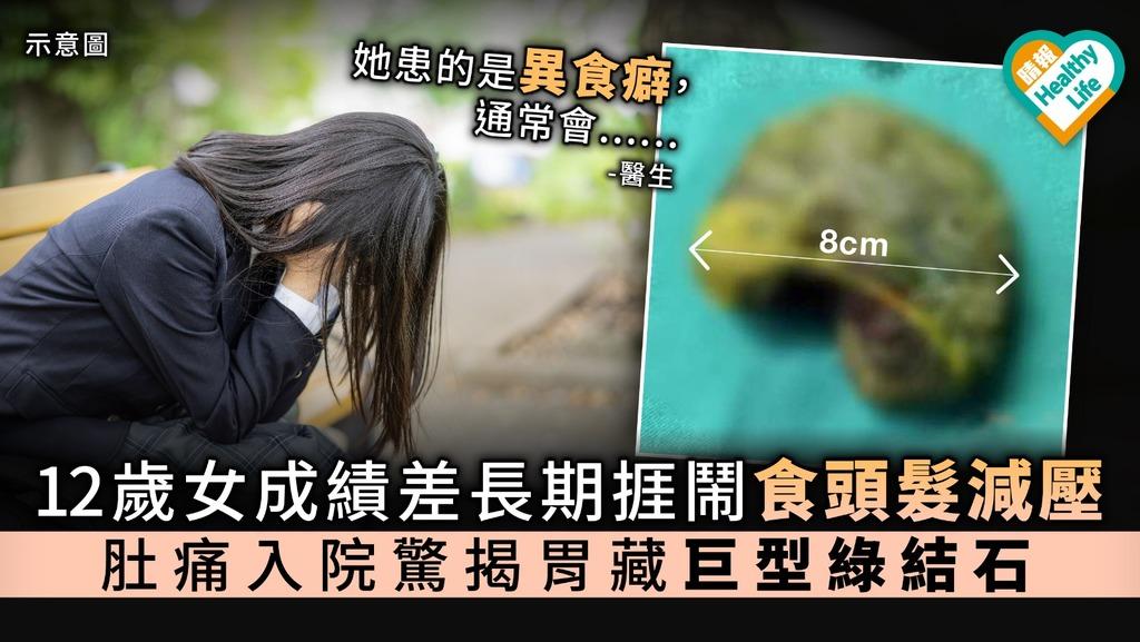 【學業壓力】12歲女成績差長期捱鬧食頭髮減壓 肚痛入院驚揭胃藏巨型綠結石【附醫生解說】