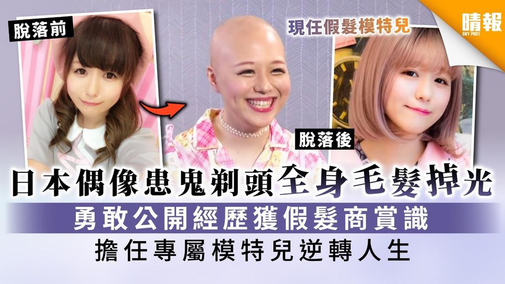 【脫髮危機】日本偶像患鬼剃頭全身毛髮掉光 勇敢公開經歷獲假髮商賞識 擔任專屬模特兒逆轉人生