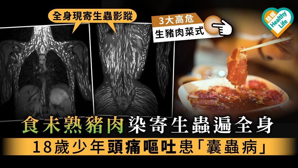 【食用安全】食未熟豬肉染寄生蟲遍全身 18歲少年頭痛嘔吐患「囊蟲病」【附3大高危生豬肉菜式】