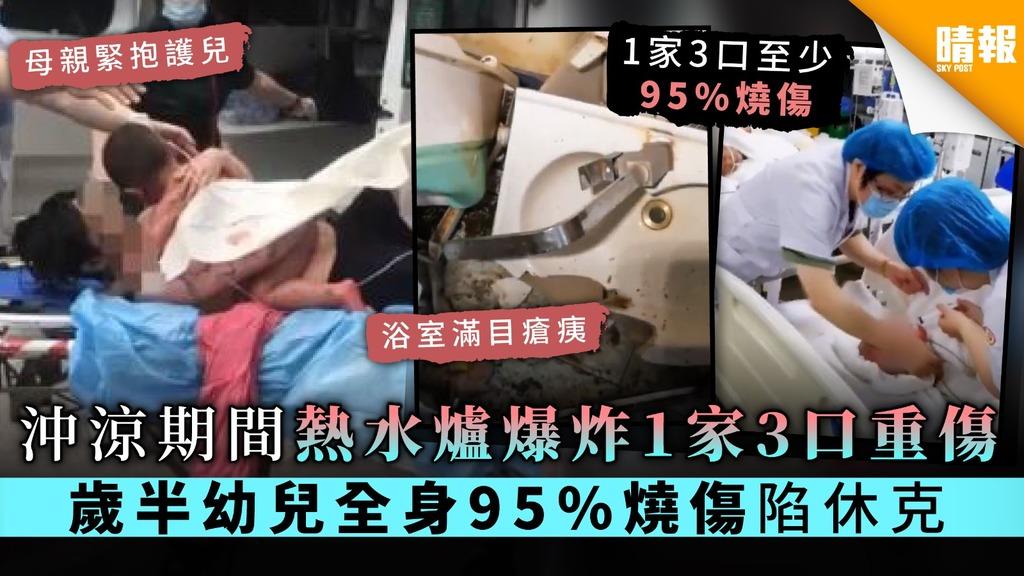 【家居意外】沖涼期間熱水爐爆炸1家3口重傷 歲半幼兒全身95%燒傷陷休克