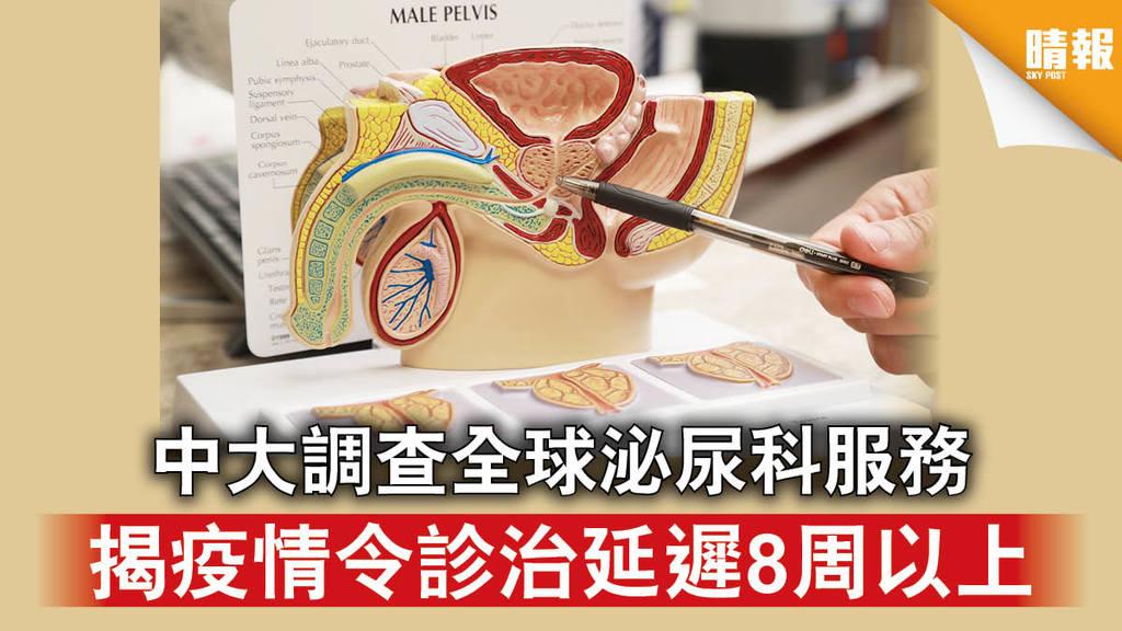 【新冠肺炎】中大調查全球泌尿科服務 揭疫情令診治延遲8周以上