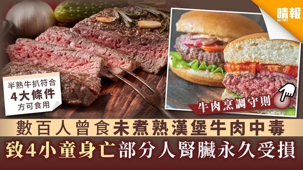 【食物安全】數百人曾食未煮熟漢堡牛肉中毒 致4小童身亡部分人腎臟永久受損