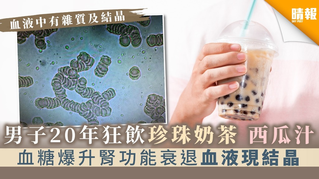 【致命飲食】男子20年狂飲珍珠奶茶西瓜汁 血糖爆升腎功能衰退血液現結晶