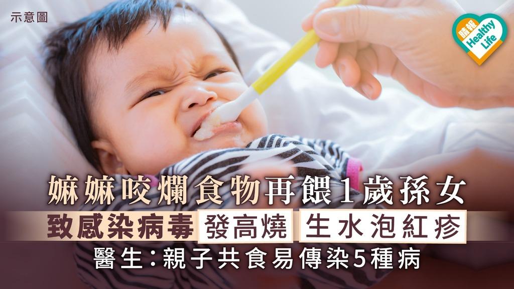 嫲嫲咬爛食物再餵1歲孫女致感染病毒 發高燒生水泡紅疹