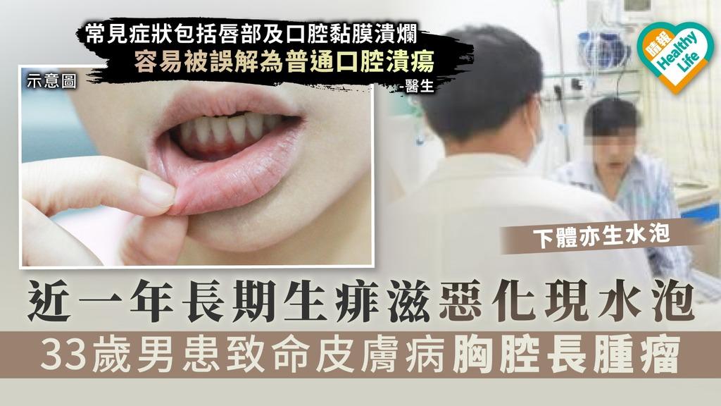 【生痱滋】近一年長期生痱滋惡化現水泡 33歲男患罕見皮膚病胸腔長腫瘤