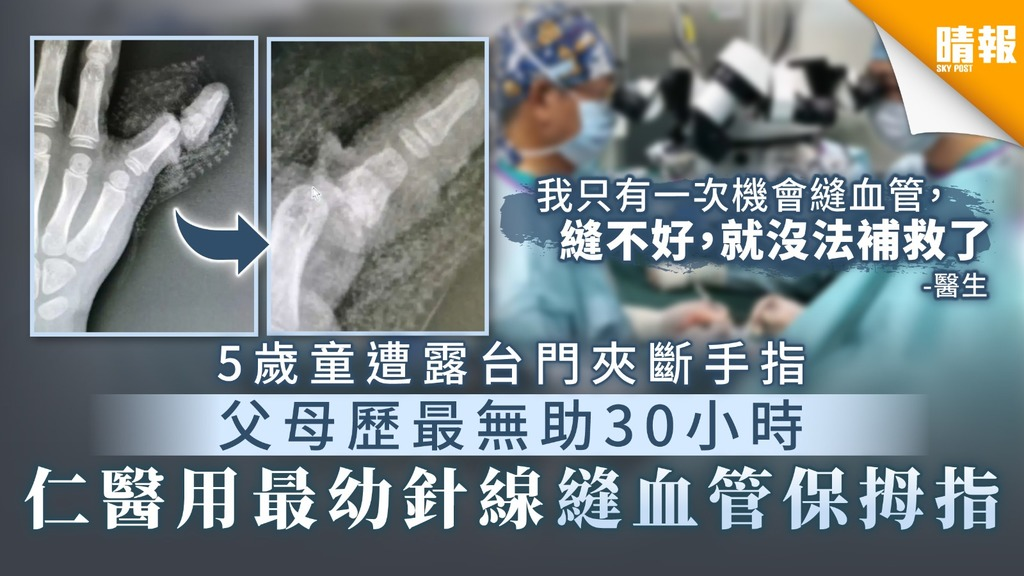 【家居意外】5歲童遭露台門夾斷手指 父母歷最無助30小時 仁醫用最幼針線縫血管保拇指