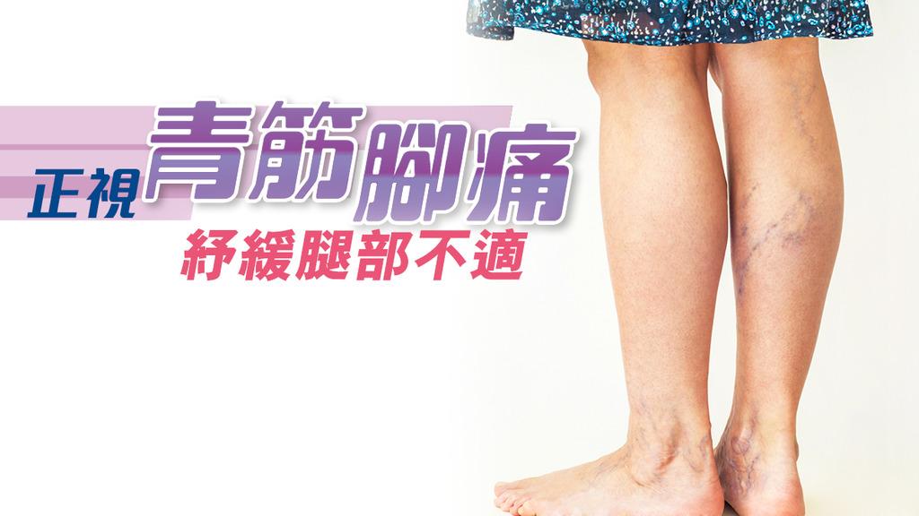 「正視青筋腳痛 紓緩腿部不適」