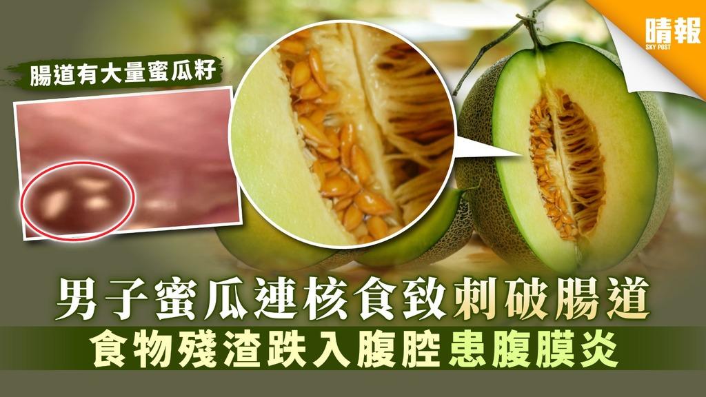 【食用安全】男子蜜瓜連核食致刺破腸道 食物殘渣跌入腹腔致腹膜炎