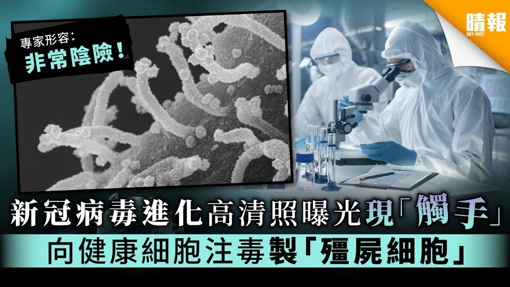 【病毒進化】新冠病毒進化高清照曝光現「觸手」 向健康細胞注毒製「殭屍細胞」
