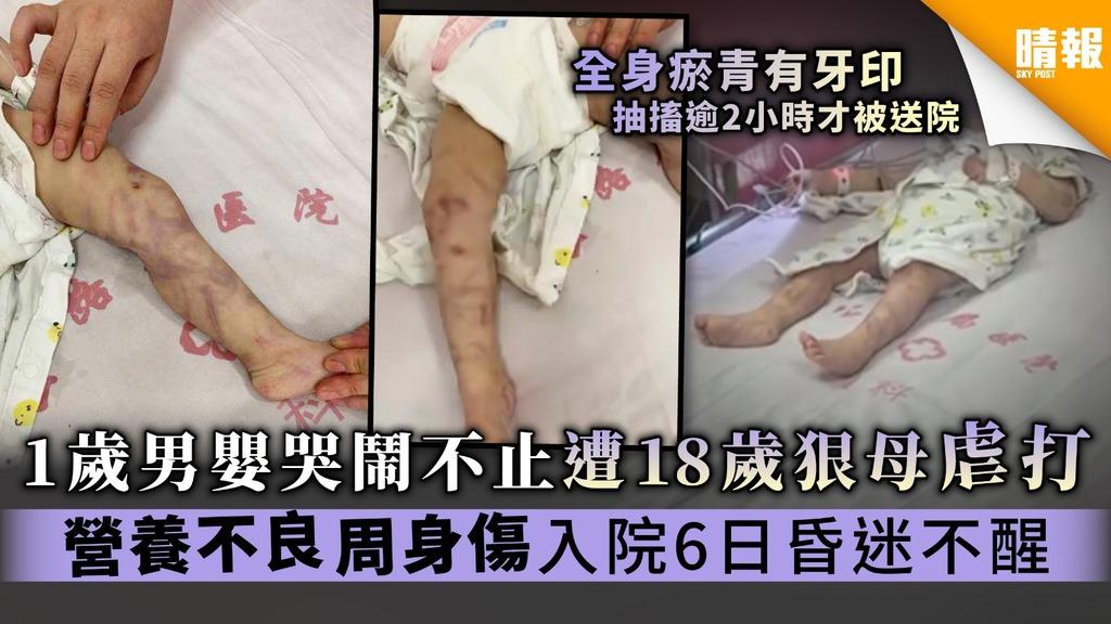 【冷血虐兒】1歲男嬰哭鬧不止遭18歲狠母虐打 營養不良周身傷入院6日昏迷不醒