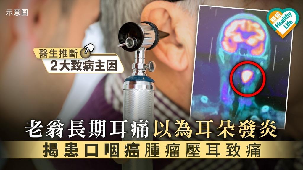 【耳內抽痛】長期耳痛以為耳朵發炎 老翁揭患口咽癌腫瘤壓耳致痛
