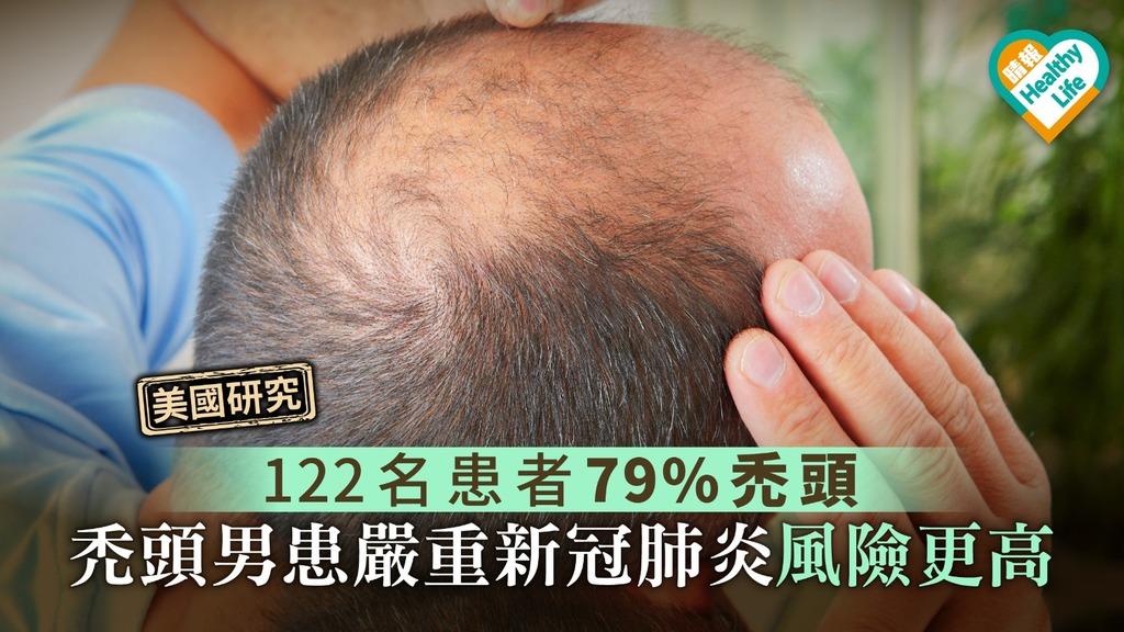 【美國研究】122名患者79%禿頭 禿頭男患嚴重新冠肺炎風險更高