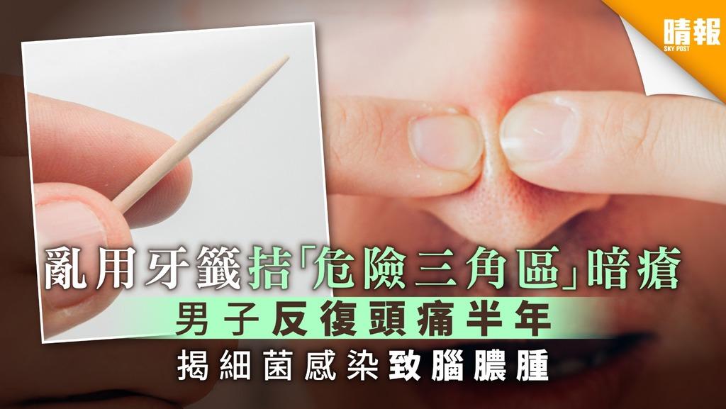 亂用牙籤拮「危險三角區」暗瘡 男子反復頭痛半年 揭細菌感染致腦膿腫