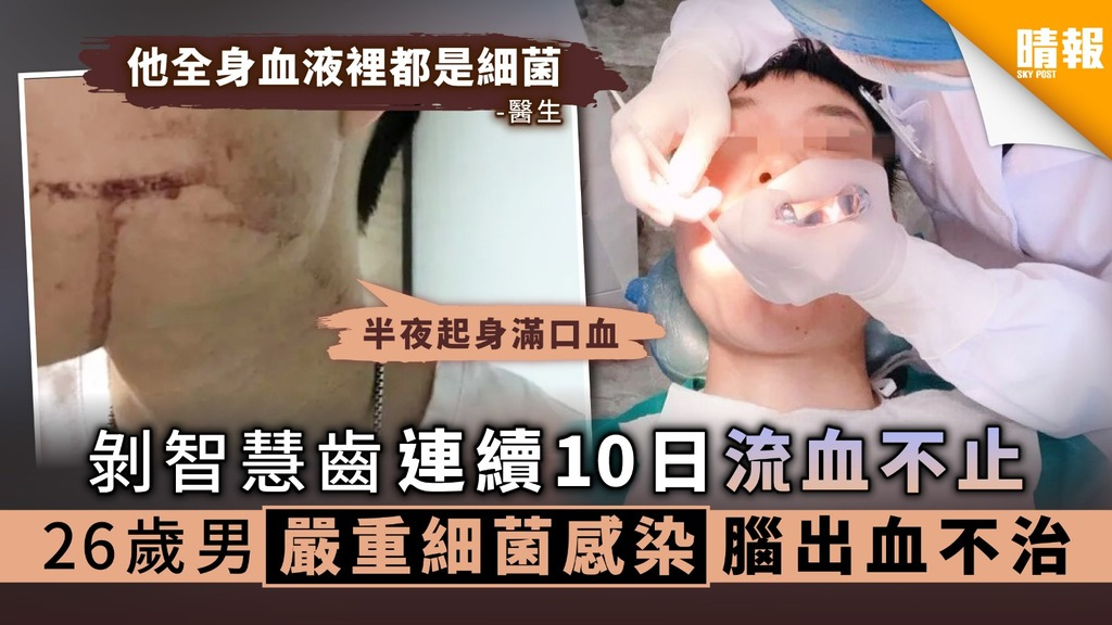 【拔智慧齒】剝智慧齒連續10日流血不止 26歲男嚴重細菌感染腦出血不治