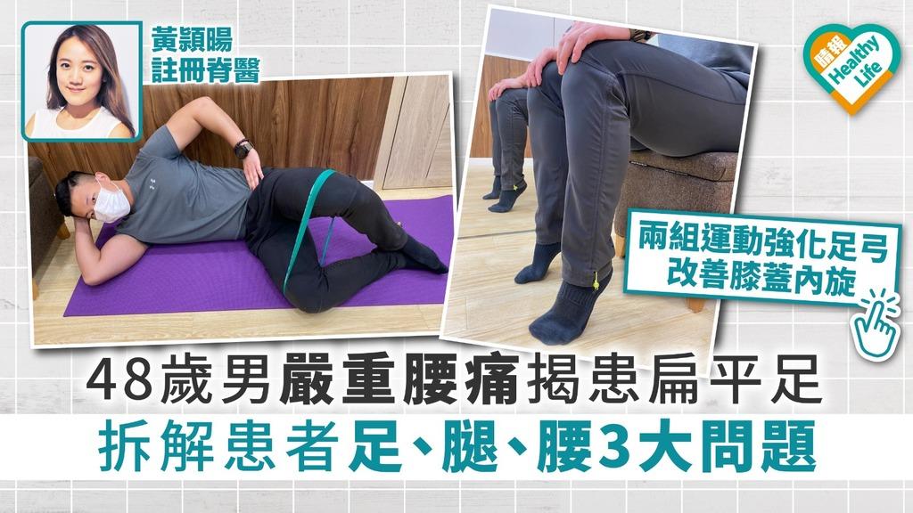 48歲男嚴重腰痛 揭患扁平足 拆解患者足、腿、腰3大問題