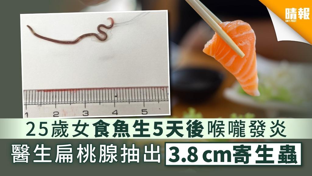 【寄生蟲】25歲女食魚生5天後喉嚨發炎 醫生扁桃腺抽出3.8cm寄生蟲