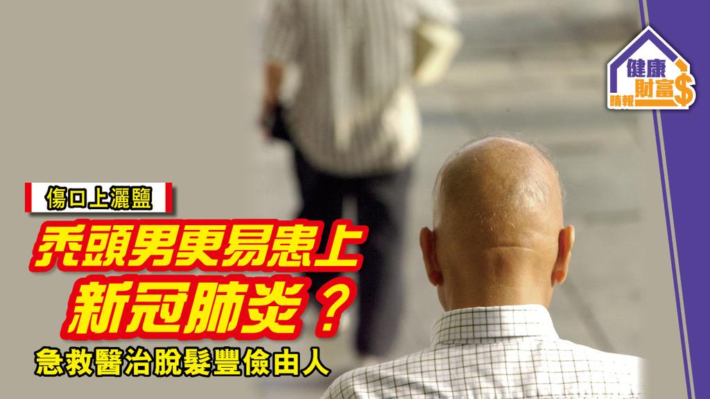 【傷口上灑鹽】禿頭男更易患上新冠肺炎?急救醫治脫髮豐儉由人