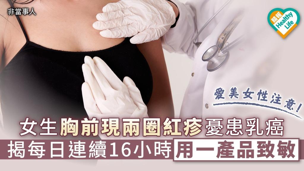 【貪靚致病】女生胸前現兩圈紅疹憂患乳癌 揭每日連續16小時用一產品致敏