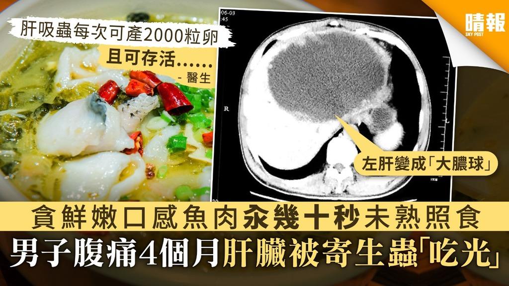 【寄生蟲】貪鮮嫩口感魚肉汆幾十秒未熟照食 男子腹痛4個月肝臟被寄生蟲「吃光」