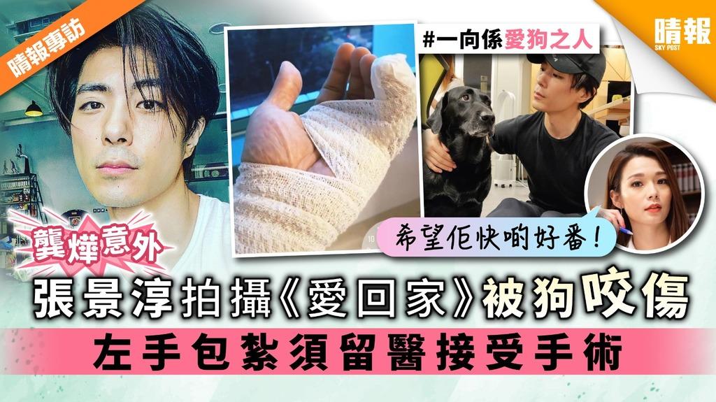 【龔燁意外】張景淳拍攝《愛回家》被狗咬傷 左手包紮須留醫接受手術