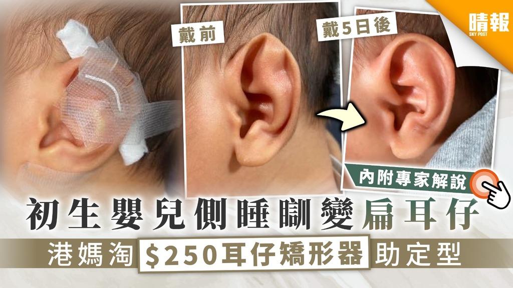 【耳仔矯形】初生嬰兒側睡瞓到變扁耳仔 港媽淘$250耳仔矯形器助定型