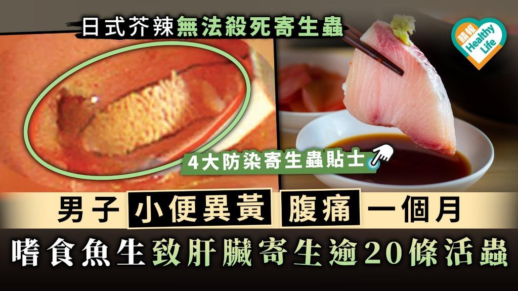 【食用安全】男子小便異黃腹痛一個月 嗜食魚生致肝臟寄生逾20條活蟲
