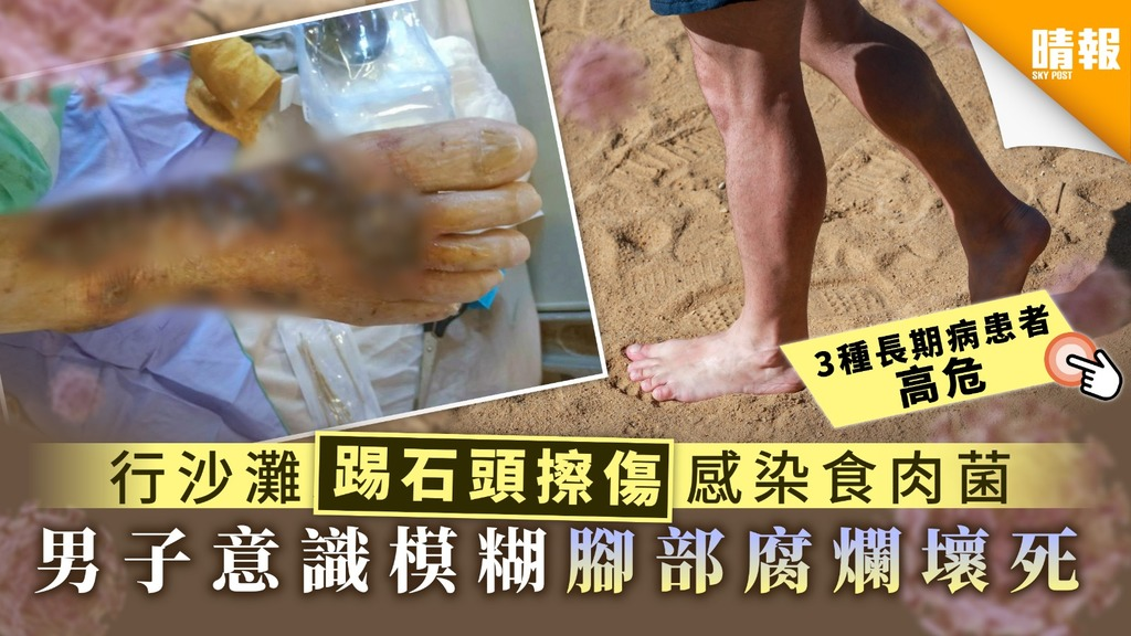 行沙灘踢石頭擦傷感染食肉菌 男子意識模糊腳部腐爛壞死