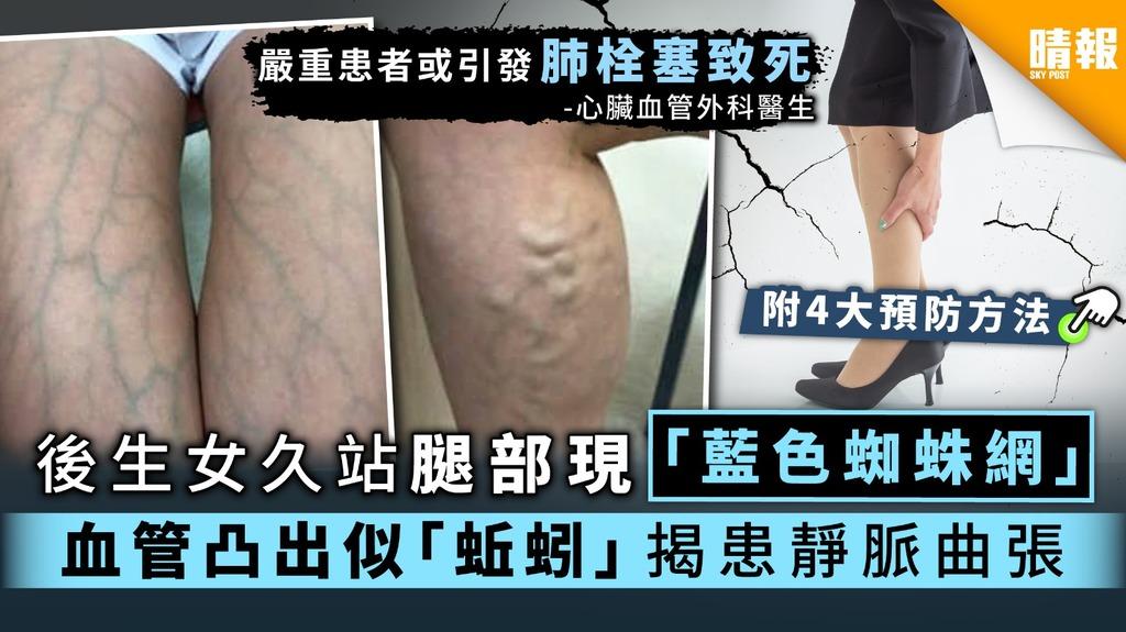 【都市病】後生女久站腿部現「藍色蜘蛛網」 血管凸出變「蚯蚓」揭患靜脈曲張【4大預防方法】