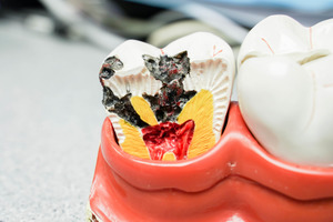 【蛀牙】牙醫超詳細蛀牙懶人包 由蛀牙成因、預防方法到正確刷牙方法