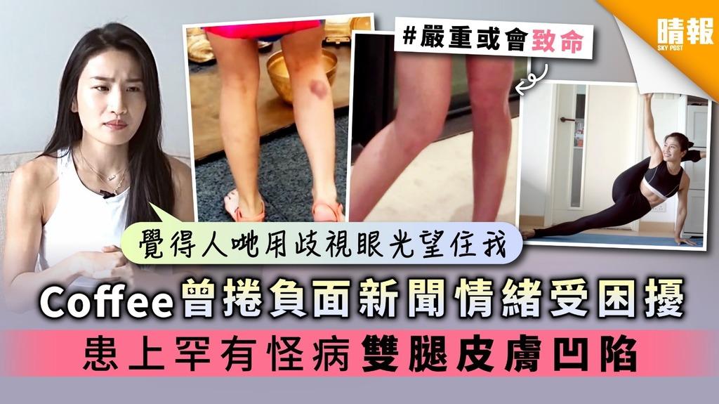 【人生過山車】Coffee林芊妤曾捲負面新聞情緒受困擾 患上罕有怪病 雙腿皮膚凹陷