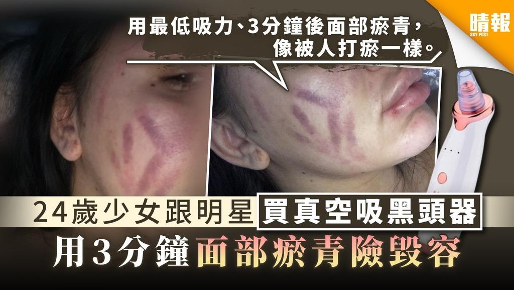 【清黑頭】24歲少女跟明星買真空吸黑頭器 用3分鐘面部瘀青險毀容