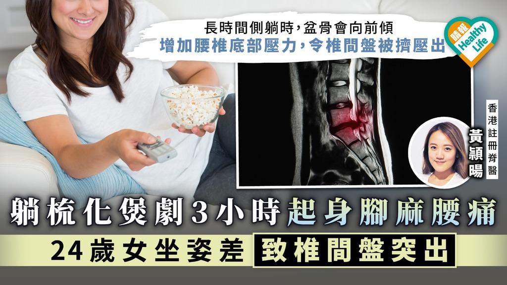 躺梳化煲劇3小時起身腳麻腰痛 24歲女坐姿差致椎間盤突出