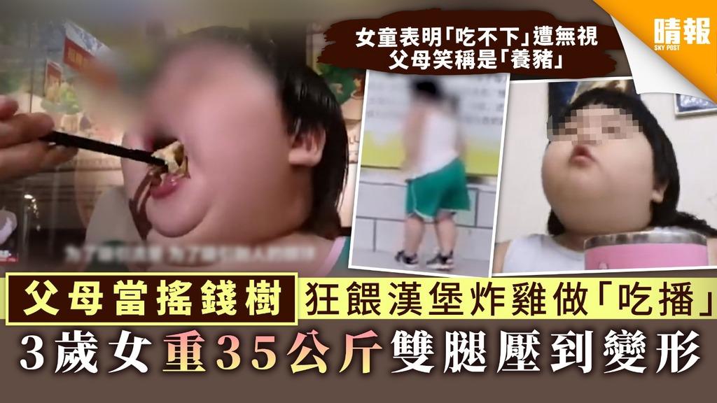 【兒童肥胖】父母當搖錢樹狂餵漢堡炸雞做「吃播」 3歲女重35公斤雙腿壓到變形【附4大改善建議】