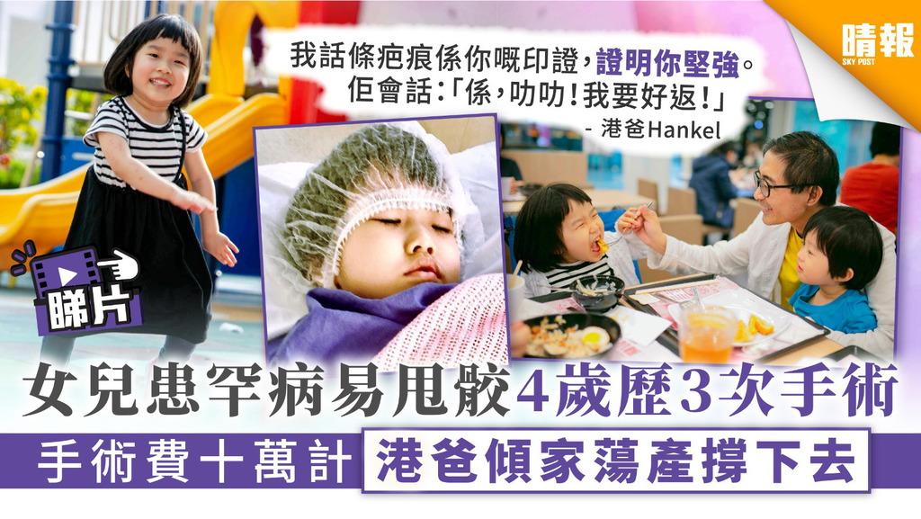 【樂觀小天使.有片】女兒患罕病易甩骹4歲歷3次手術 手術費十萬計港爸傾家蕩產撐下去