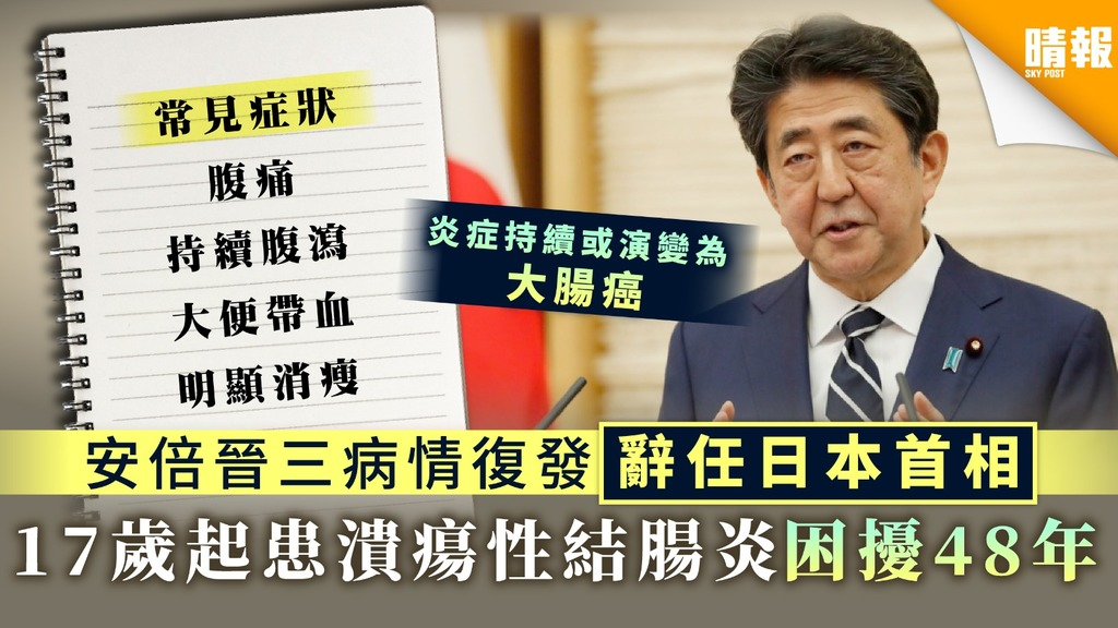 【大腸癌先兆】17歲起患潰瘍性結腸炎困擾48年 安倍晉三病情復發辭任日本首相