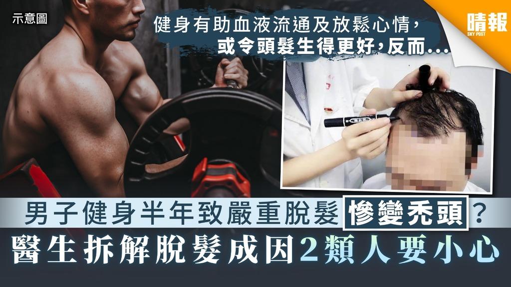 【雄脫】男子健身半年致嚴重脫髮慘變禿頭? 醫生拆解脫髮成因2類人要小心