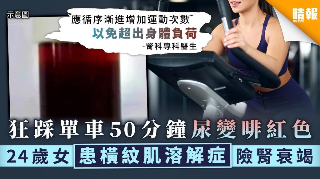 狂踩單車50分鐘尿變啡紅色 24歲女患橫紋肌溶解症險腎衰竭